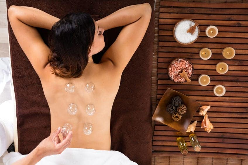 Chinese Cupping Therapy: Helpful or All Hype?