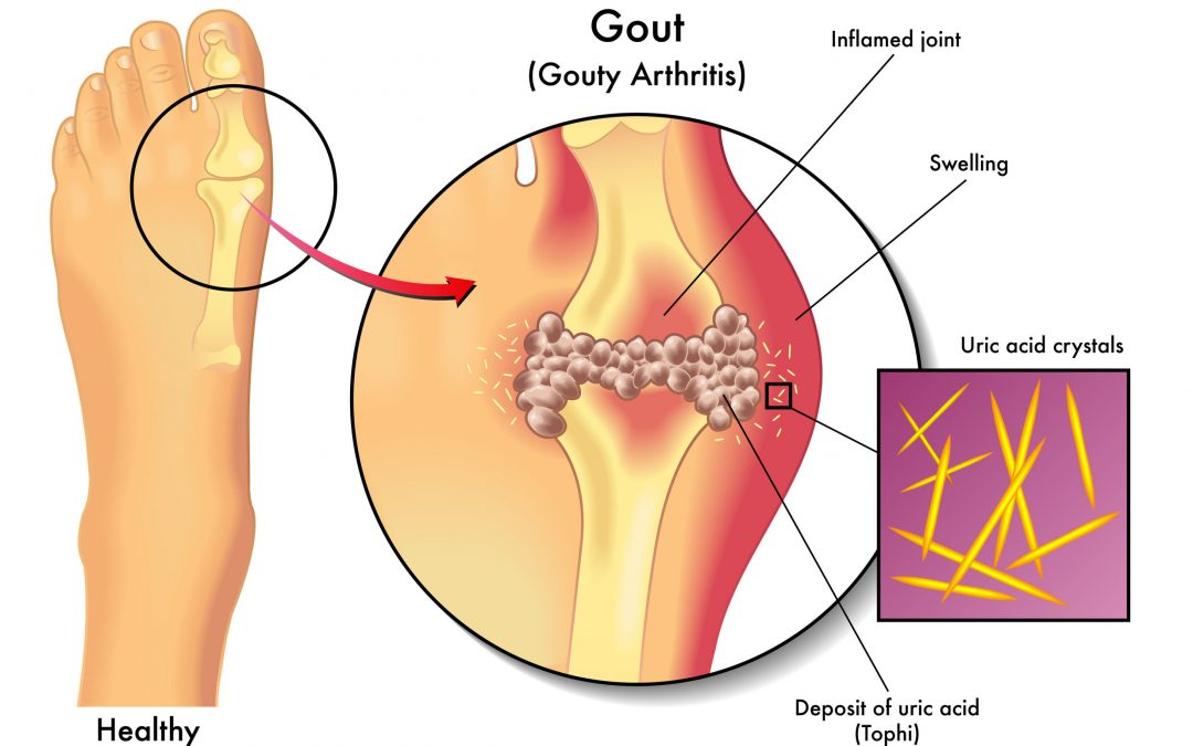 Possible Causes Of Uric Acid Build Up And Joint Discomfort