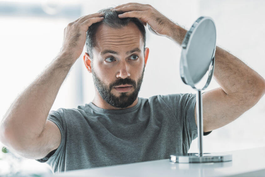 How To Recognize Early Signs Of Balding
